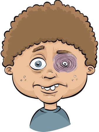 Een cartoon jongen met een pijnlijke, gezwollen blauw oog.