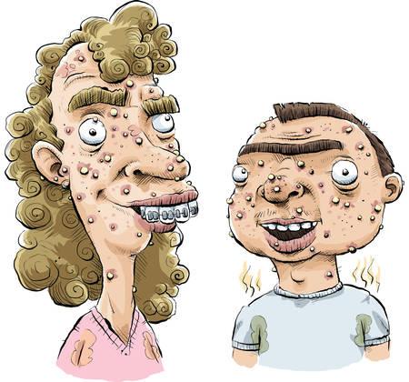 Een cartoon tiener meisje en jongen met ernstige acne.