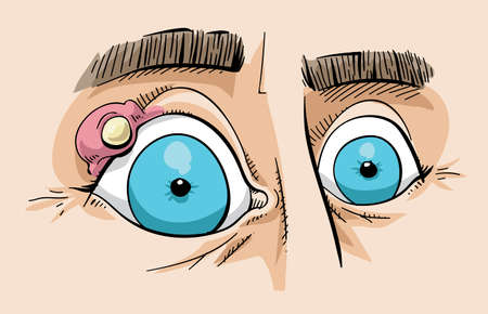 zit: Cartoon of a close up of a stye on the eyelid of a persons eye. Illustration