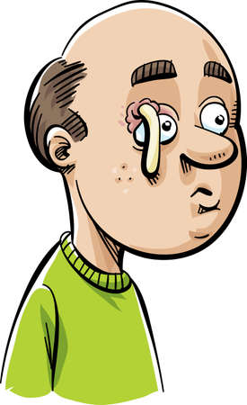 pus: A cartoon man with a stye above his eye that has popped and is oozing pus.