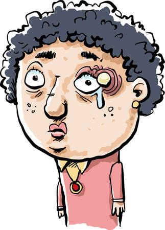 persona enferma: Una mujer triste caricatura con una gran orzuelo justo encima de su ojo. Vectores