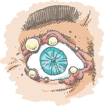 pus: Un occhio cartone animato infettato da più porcili intorno al coperchio dell'occhio.