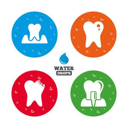gingivitis: Water drops on button. Dental care icons. Caries tooth sign. Tooth endosseous implant symbol. Parodontosis gingivitis sign. Realistic pure raindrops on circles. Vector