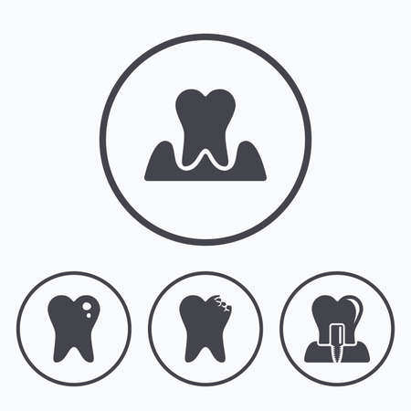 gingivitis: Dental care icons. Caries tooth sign. Tooth endosseous implant symbol. Parodontosis gingivitis sign. Icons in circles.