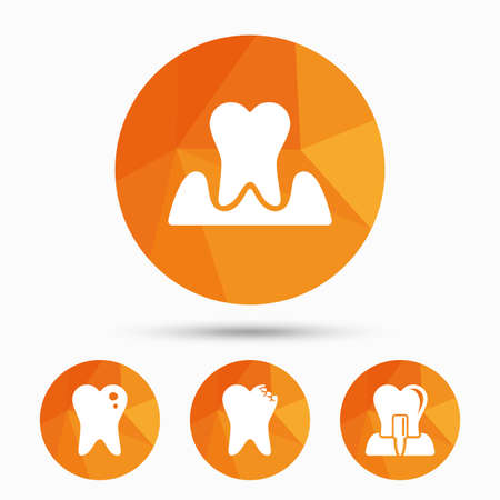 gingivitis: Dental care icons. Caries tooth sign. Tooth endosseous implant symbol. Parodontosis gingivitis sign. Triangular low poly buttons with shadow. Vector