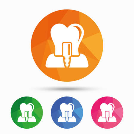 Tooth implant icon. Dental endosseous implant sign. Dental care symbol. Triangular low poly button with flat icon. Vector