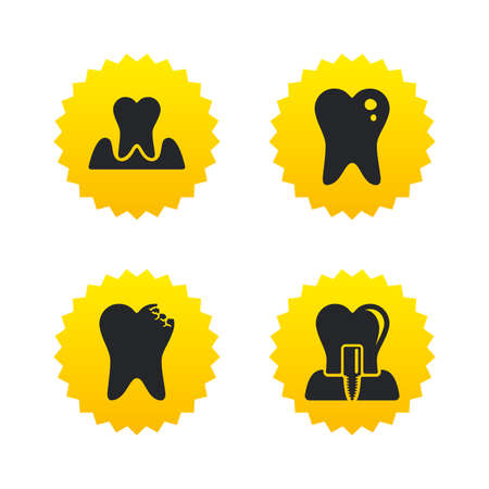 gingivitis: Dental care icons. Caries tooth sign. Tooth endosseous implant symbol. Parodontosis gingivitis sign. Yellow stars labels with flat icons. Vector