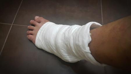 splint: férula suave para sanar lesiones en las piernas de las fracturas y la inflamación del tendón
