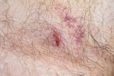 Caucasian male hairy leg wounded skin with bruise and scaring close up macro shot 2020