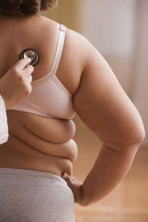 Overweight woman getting checked by doctor with stethoscope LANG_EVOIMAGES