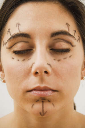 Native American woman with plastic surgery marks on face