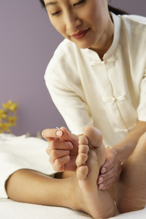 Asian female doctor performing Acupuncture treatment LANG_EVOIMAGES