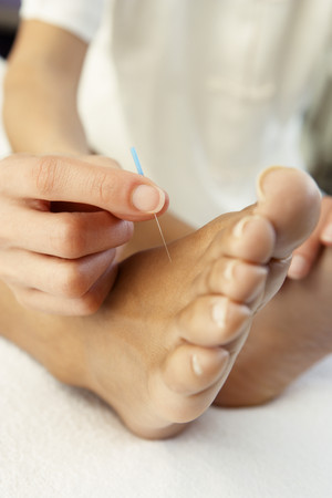 Close up of Acupuncture treatment