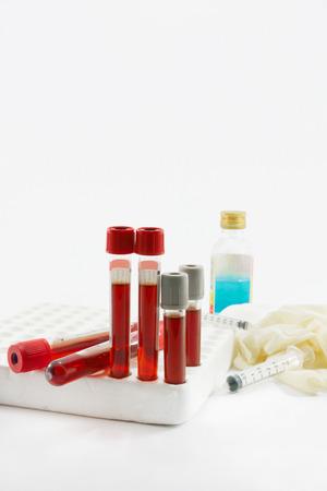 metodo cientifico: Muestra de sangre a sangre tubo para la detección de la prueba y la jeringa en el fondo blanco.