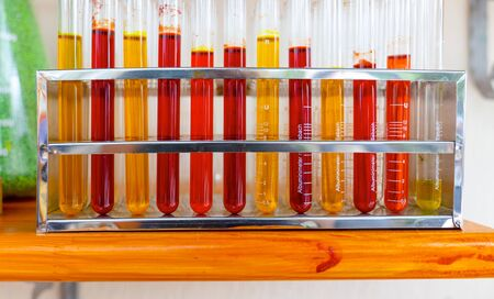 Various colored blood test tubes.