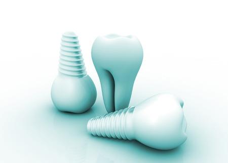 dental surgery: Dental implant