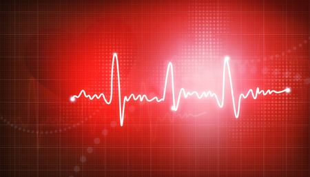 sinus: Electrocardiogram, ecg background   Stock Photo