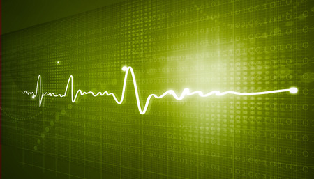 oscillate: Electrocardiogram, ecg background   Stock Photo