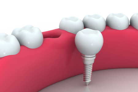 dental health:     Dental implant , human Tooth