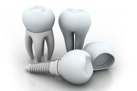 steel bridge: Dental Implant   Stock Photo