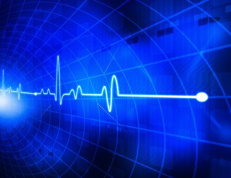 oscillate: Electrocardiogram   Stock Photo