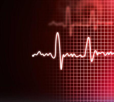Electrocardiogram background photo