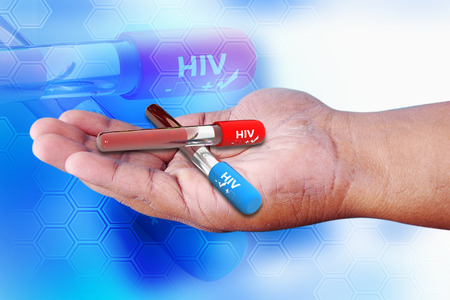 Blood collection tube with HIV test , HIV positive and negative photo