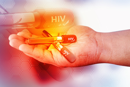 immunize: Blood collection tube with HIV test , HIV positive and negative Stock Photo