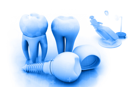 implanted: Dental implant , human Tooth Stock Photo