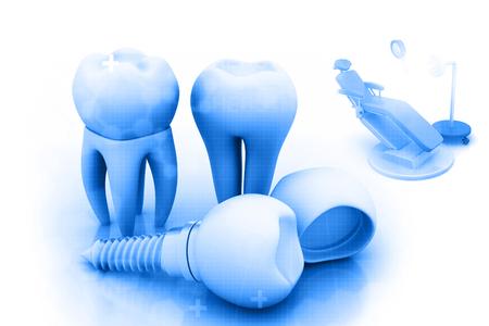 Dental implant , human Tooth Stock Photo