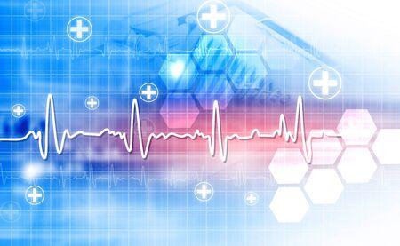 Elektrokardiogram, EKG, EKG