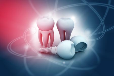 straighten: Dental implant