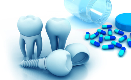 dental impression: Dental implant concept and pills on beautiful background