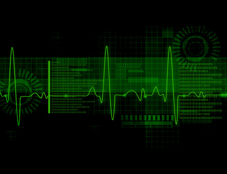 heart ecg trace: ECG Electrocardiography, medical and healthcare background Stock Photo