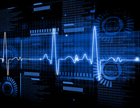 heart ecg trace: ECG Electrocardiography, medical and healthcare background. Stock Photo