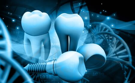 implanted: Tooth human implant. 3d illustration