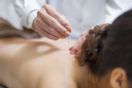 Young woman receiving acupuncture