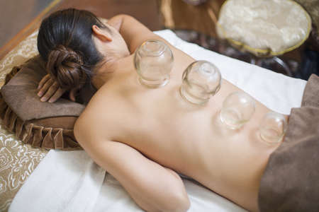 cupping glass cupping: Young woman receiving vacuum cupping treatment LANG_EVOIMAGES