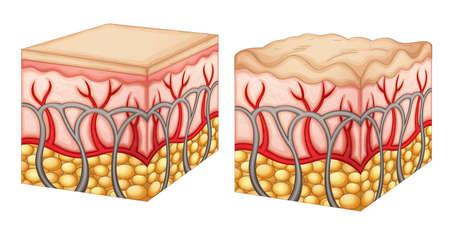 cellulite: Diagrama que muestra el tejido normal de la piel y tejido de la piel con celulitis