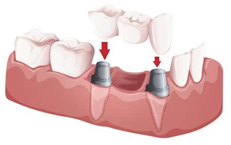 dentier: Illustration d'un bridge dentaire