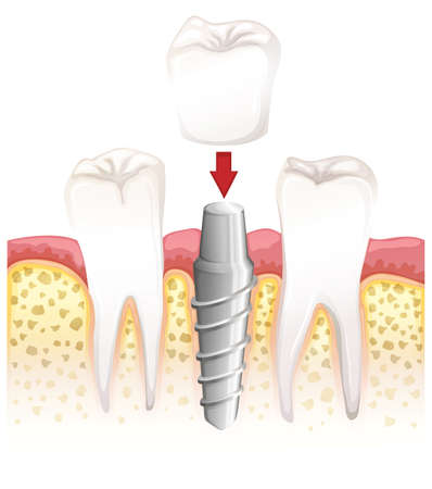 Illustration showing dental crown procedure