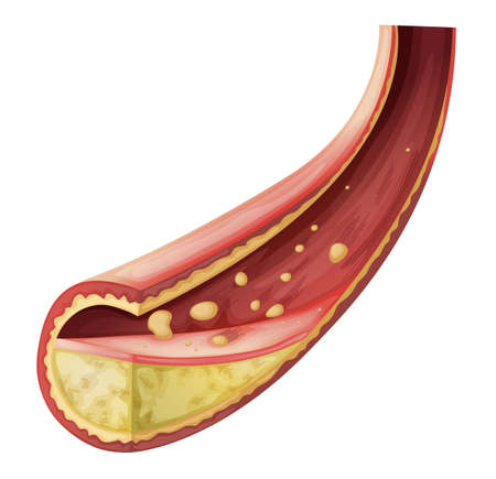 Illustration of an Artery blocked with cholesterol on a white background