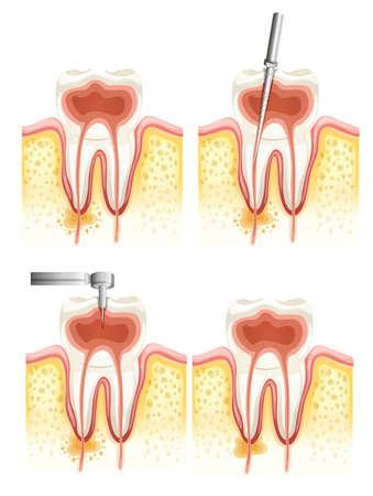 펄프: 흰색 배경에 치과 근관 악화의 그림 일러스트