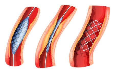 angina: Ilustración de un stent utilizado para abrir la arteria bloqueada en un fondo blanco Vectores