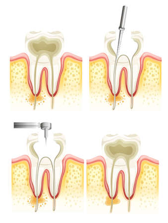 canals: Illustration of the dental root canal process
