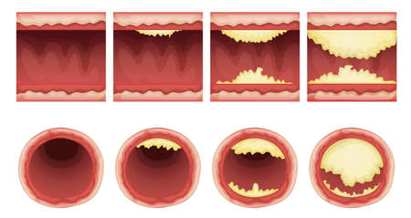 cholesterol: Illustration of plaque accumulation in a vessel Illustration