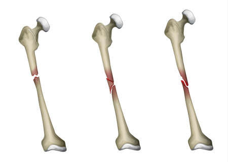 osteo: Three types of bone fracture in the femur