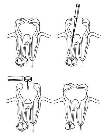 root canal: Diagram of the root canal procedure