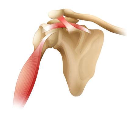 trizeps: Illustration der Muskeln um die Schulter