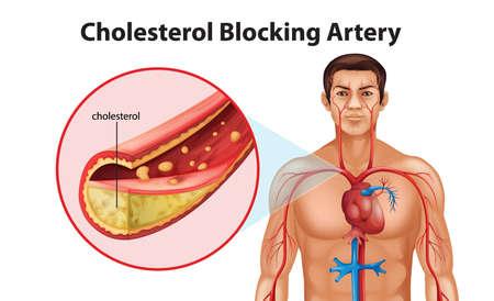 placa bacteriana: Ilustraci�n que muestra el proceso de ateriosclerosis